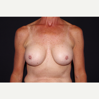 55-64 year old woman treated with Breast Implant Removal before 3741908