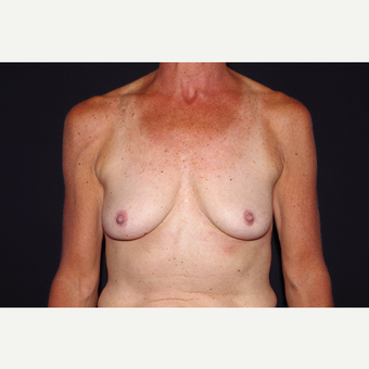 55-64 year old woman treated with Breast Implant Removal after 3741908