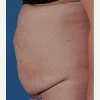 45-54 year old woman treated with Tummy Tuck before 3844220