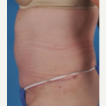 45-54 year old woman treated with Tummy Tuck after 3844220