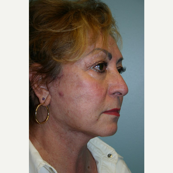 52 year old woman treated with Facelift after 3667729