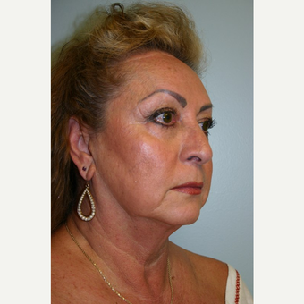 52 year old woman treated with Facelift before 3667729