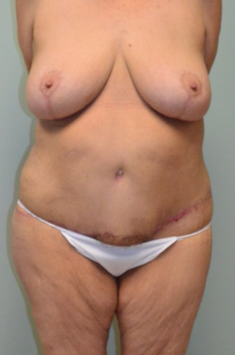 Lower body lift and breast augmentation after 1059218