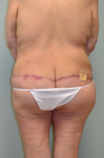 Lower body lift and breast augmentation 1059218