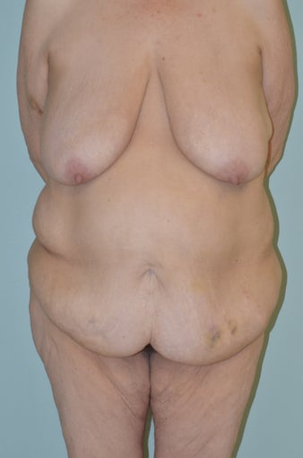Lower body lift and breast augmentation before 1059218