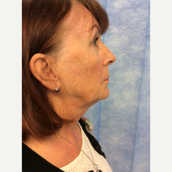 45-54 year old woman treated with Facelift before 3265150