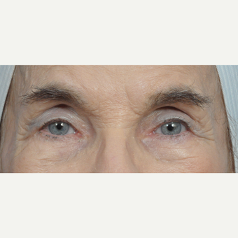 82 year old woman treated with Eyelid Surgery after 3440986