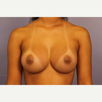 Breast Augmentation with tear-drop shaped gummy bear implants after 3190722