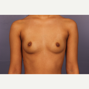 Breast Augmentation with tear-drop shaped gummy bear implants before 3190722