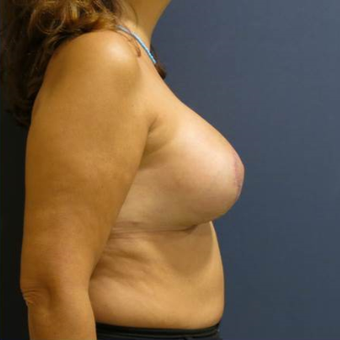 45-54 year old woman treated with Breast Lift with Implants after 3841773