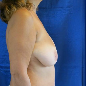 45-54 year old woman treated with Breast Lift with Implants before 3841773