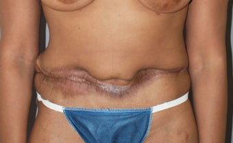 Revision of Abdomen from a Cosmetic Surgeon