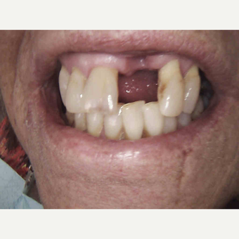 55-64 year old woman treated with Dental Crown before 2879755