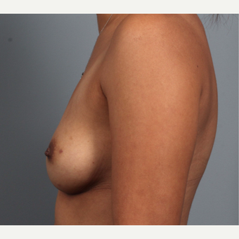 35-44 year old woman treated with Breast Reconstruction, BRCA+ before 3494519