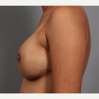 35-44 year old woman treated with Breast Reconstruction, BRCA+ after 3494519