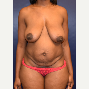 35-44 year old woman treated with Mommy Makeover before 3508668