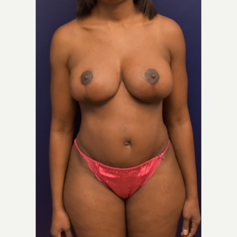 35-44 year old woman treated with Mommy Makeover after 3508668