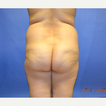 25-34 year old woman treated with Brazilian Butt Lift before 3299078
