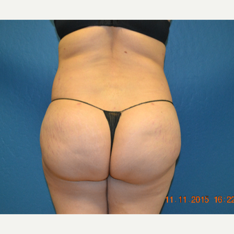 25-34 year old woman treated with Brazilian Butt Lift after 3299078