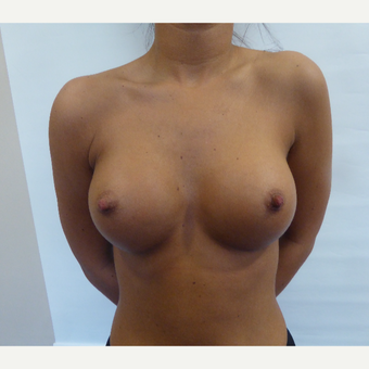18-24 year old woman treated with Breast Augmentation after 3375664