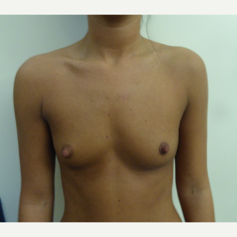 18-24 year old woman treated with Breast Augmentation before 3375664