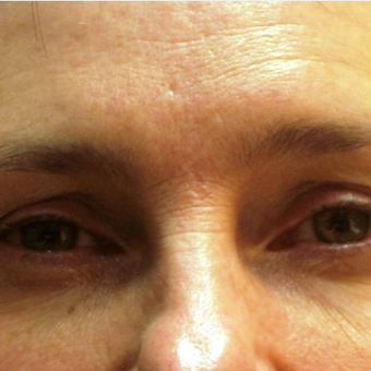 Non-surgical eyebrow lift with Botox before 3201997