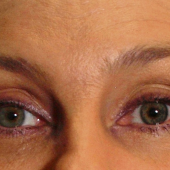 Non-surgical eyebrow lift with Botox after 3201997
