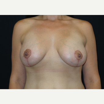 25-34 year old woman treated with Breast Lift with Implants after 3305654