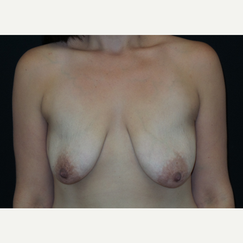 25-34 year old woman treated with Breast Lift with Implants before 3305654