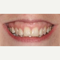 45-54 year old woman treated with Lip Lowering before 3026743