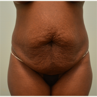 Embrace Scar Therapy used to minimize scarring from tummy tuck and liposuction. before 3287786