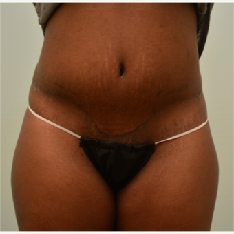 Embrace Scar Therapy used to minimize scarring from tummy tuck and liposuction. after 3287786