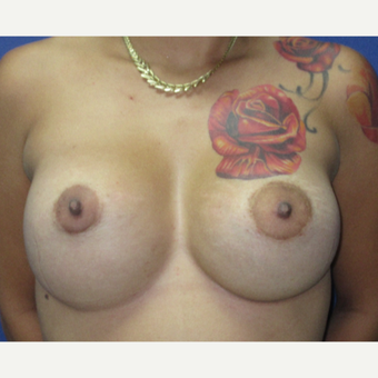 25-34 year old woman treated with Breast Augmentation after 3695784