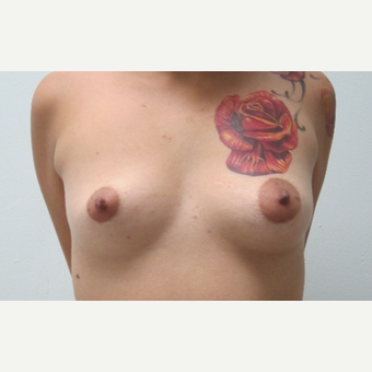 25-34 year old woman treated with Breast Augmentation before 3695784