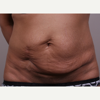 35-44 year old woman treated with Tummy Tuck before 3142110