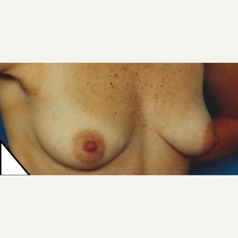 35-44 year old woman treated with Breast Augmentation before 3629308