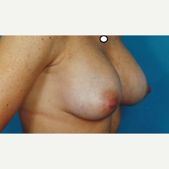 35-44 year old woman treated with Breast Augmentation after 3629308