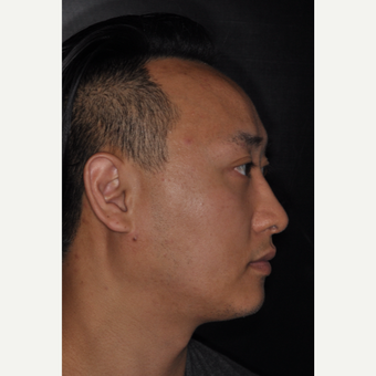 35-44 year old man treated with Rhinoplasty 8 months post-op after 3499931
