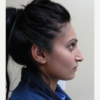 18-24 year old woman treated with Rhinoplasty before 3691935