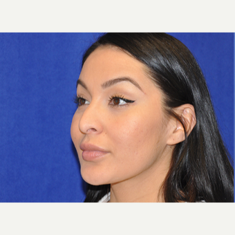 35-44 year old woman treated with Rhinoplasty before 3219696
