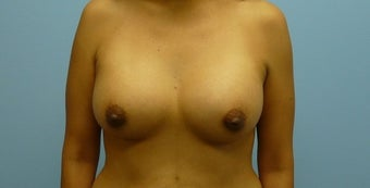 Breast Augmentation 36-year-old female after 925408