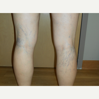 45-54 year old woman treated with Vein Treatment before 3161497