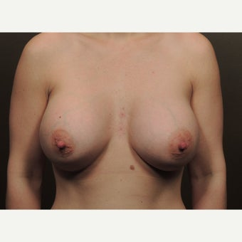 25-34yr old woman treated w/ Breast Augmentation after 1919460