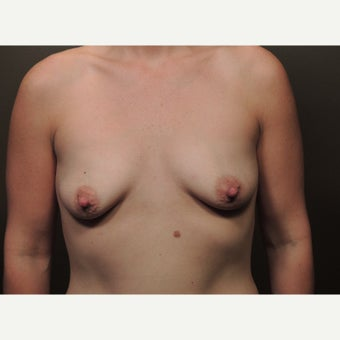 25-34yr old woman treated w/ Breast Augmentation before 1919460
