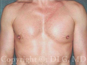 48 Year Old Male With Pec Implants