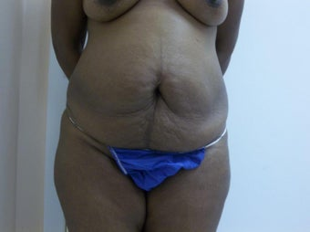 45 year old female. Full abdominoplasty with liposuction to folds before 1229624