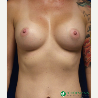 37 year old woman treated with Breast Augmentation after 3253793