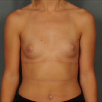18-24 year old woman treated with Breast Implants before 3583105