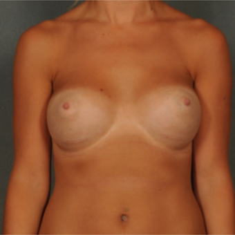 18-24 year old woman treated with Breast Implants after 3583105