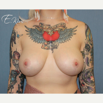 25-34 year old woman treated with Breast Lift with Implants after 3663435